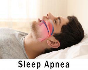 Visual illustration of sleep apnea - Extra Large Living